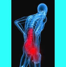 what is sciatic pain?